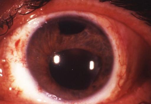 corneal ulcer prednisone