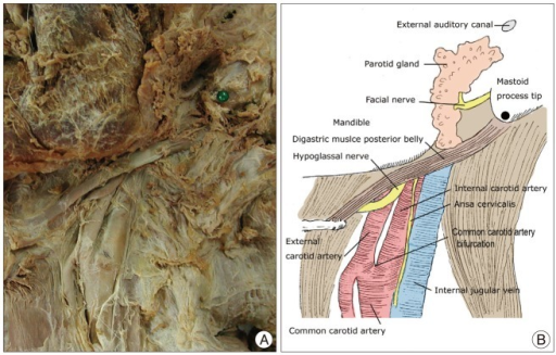 Neurovascular Structures Of The Submandibular Area A Open I