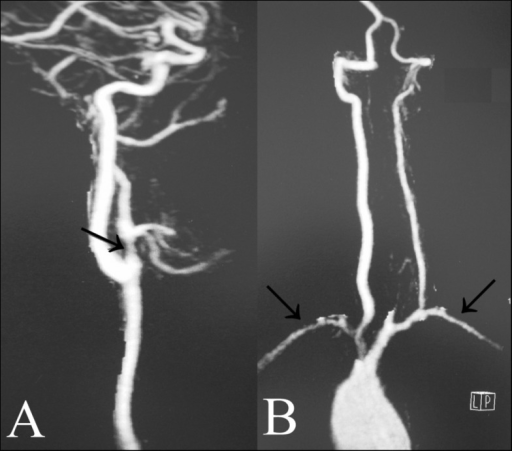 Computed Tomography Angiography of the Neck.(A) Bifurcation of the right common carotid artery showing area of stenosis (arrow) in the proximal external carotid artery. (B) Narrowing and contour abnormalities (arrows) in both subclavian arteries.