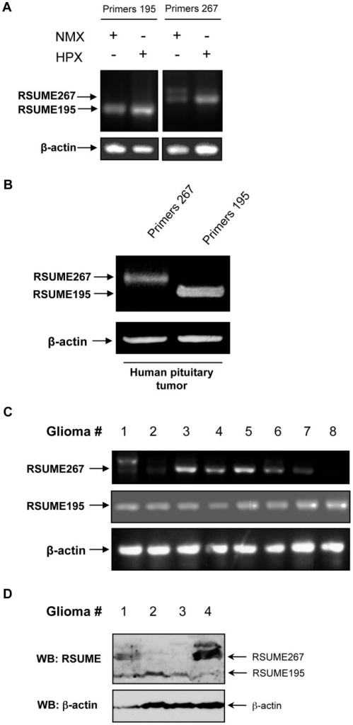 mRNA and protein expression of RSUME195 and RSUME267 in cells and tumors.A. Semi-quantitative RT-PCR with specific primers to detect mRNA levels of RSUME195 (left panel) and RSUME267 (right panel), was performed in COS-7 cells exposed to normoxic or hypoxic conditions (1% O2, 5% CO2 and 94% N2). B. Semi-quantitative RT-PCR with specific primers to detect mRNA levels of RSUME195 and RSUME267, was performed on an unstimulated human non-functioning pituitary tumor explant sample. C. Semi-quantitative RT-PCR with specific primers to detect mRNA levels of RSUME195 and RSUME267 was performed on human glioma samples. D. Western blot analysis of RSUME protein levels was performed on human glioma samples. β-actin protein levels were used as control.