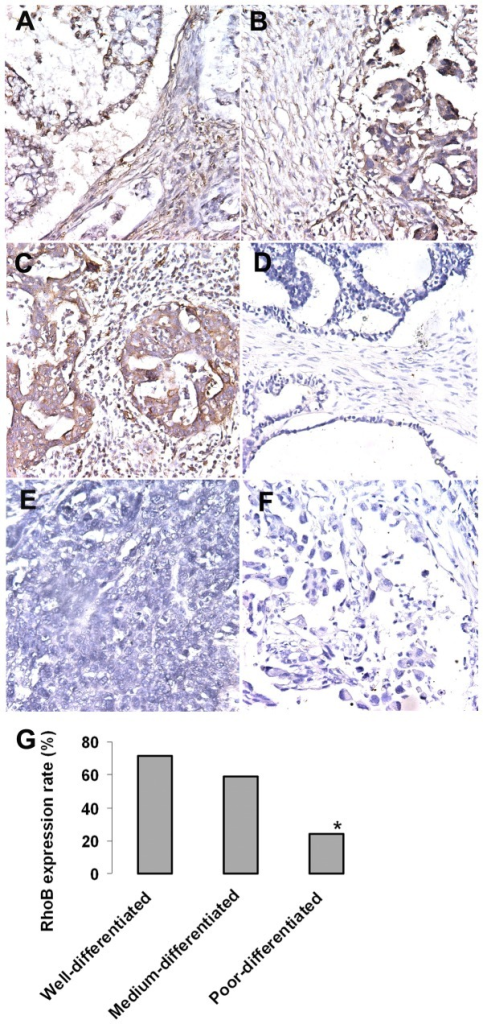 RhoB gene expression and ovary carcinoma differentiation.RhoB expression levels were analyzed respectively in well-, medium-, and poor-differentiated ovarian cancer using immunohistochemistry staining of individual paraffin sections. RhoB is expressed in the cytoplasm of monolayered ovarian surface epithelial cells for well-differentiated ovary caicinoma (AB); in medium-differentiated tumor, RhoB is expressed in the monolayered and multilayered regions of epithelium tumor (CD); and RhoB is lost in the multilayered region of epithelium for poor-differentiated tumor (EF). (G) It is clear that Poor-differentiated tumors had a significant reduction in the expression of RhoB (80% reduction) than medium differentiated (44% reduction) and well differentiated ovary cancer (28.5% reduction).