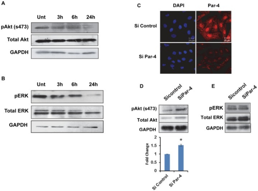 Tamoxifen induced Par-4 regulates Akt and ERK signaling in HNGC-2 cells.HNGC-2 cells treated with TAM (10 µg/mL) for increasing time periods were analyzed for the expression pattern of (A) pAkt (Ser473),total Akt and (B) pERK (42/44) and total ERK by western blotting. GAPDH was used as loading control. (C) HNGC-2 cells were transfected with control siRNA and Par-4 siRNA (100 nM) and analyzed for expression of Par-4 by immunofluorescence. (D) Transfected control and Par-4 silenced cells were analyzed for phosphoAkt (Ser473) total Akt and (E) phosphoERK and total ERK signaling by western blotting. Fold change is shown by bars, mean ± SD of three independent experiments. *p<0.05, control siRNA vs. Par-4 siRNA cells.
