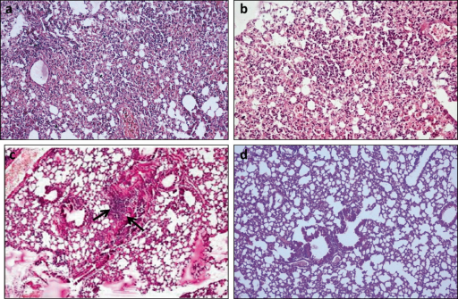 Lungs of mice infected withK. pneumoniaeB5055 and given various treatments intraperitoneally, 24 h post infection (a) normal saline alone, i.e. control group. (b) gentamicin treated (c) bacterial depolymerase treated (arrows indicate peribronchial inflammation) (d) bacterial depolymerase and gentamicin treated. (Magnification: 100×).