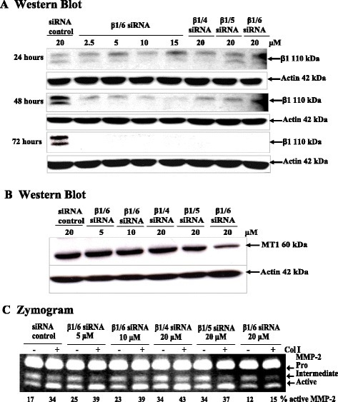 Dose response effect of β1 integrin siRNA on MMP-2 activation in MCF-7-MT1 cells. (A): Cells were plated and transfected with β1 integrin siRNA. Serial dilutions of β1/6 siRNA (2.5, 5, 10, 15 and 20 μM) were used in comparison with the 20 μM concentrations of β1/4 and β1/5 siRNAs. Protein concentrations were determined and equal amounts of lysates were electrophoresed with 10% SDS-PAGE under reducing conditions. Western Blot analysis was used to detect β1 integrin and MT1-MMP levels (B). (C): Serial dilutions of β1/6 siRNA (5, 10, and 20 μM) were used in comparison with the 20 μM concentrations of β1/4 and β1/5 siRNAs. Conditioned medium was collected and effects on MMP-2 activation were examined by zymography.