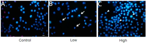 Membrane integrity is unaffected in BME26 cells after glucose treatment. The cells were directly stained by adding Hoechst 33342 and propidium iodide. Glass slides were observed in a fluorescence microscope (model Eclipse 80i, Nikon), and pictures were obtained at 400× magnification. Control: cells maintained with 50 mM of glucose (A); Low: cell maintained without glucose addition (B); and High: cells maintained with 100 mM of glucose (C). The arrows indicate the shape of low-glucose cells and the triangles indicate the rounded shape of high-glucose cells. Scale bar: 10 μm.