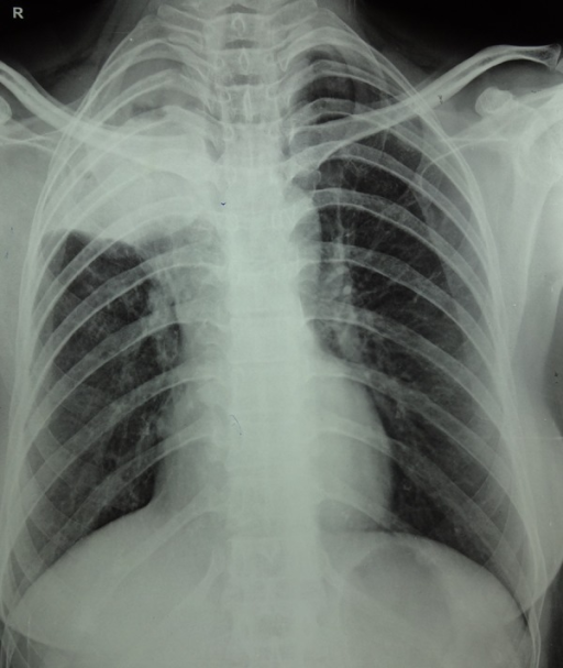 Chest X-ray PA view showing a homogeneous opacity in the right upper zone.