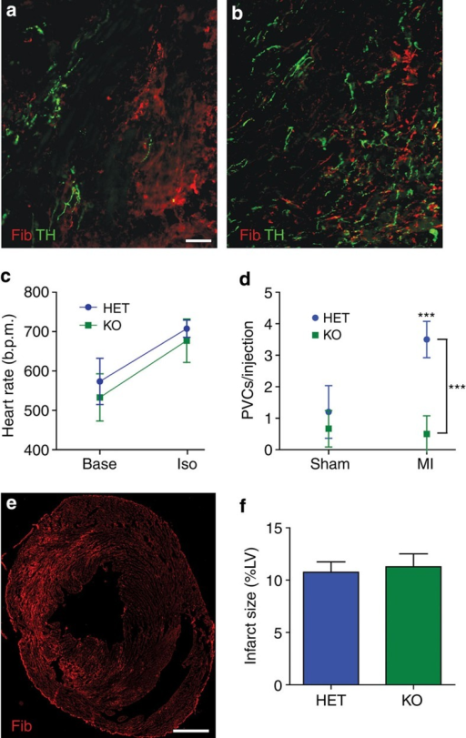 Absence of PTPσ restores innervation to the infarcted myocardium and prevents arrhythmias.Heart sections from HET (a) and KO (b) mice were stained for TH (green) to identify sympathetic nerve fibres and fibrinogen (red) to identify the infarct. Scale bar, 100 μm. (c) Heart rate was similar in both genotypes before (Base) and after (ISO) 10-μg ISO injection (mean±s.e.m., n=8 per genotype). (d) ISO induced comparable levels of PVCs in conscious Sham HET and KO mice; however, ISO induced significantly more PVCs in infarcted HET mice compared with KO mice and to Sham HET mice (mean±s.e.m., n=4 per group, ***P<0.001 versus HET sham and KO MI; two-way ANOVA with Bonferroni post test). (e) Fibrinogen-stained section after MI showing a transmural infarct after a 35-min occlusion. Scale bar, 500 μm. (f) Quantification of infarct size in HET and KO hearts following 35 min of occlusion (mean±s.e.m., n=4 per group; t-test, N.S. P>0.05).