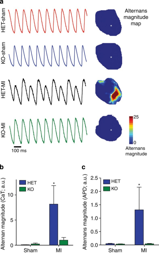 Sympathetic innervation of the infarct prevents post-MI Ca2+ mishandling.(a) Representative optical Ca2+ transients and alternans maps from the sites on sham and post-MI hearts marked (*) paced with a 100-ms pacing interval (600 b.p.m. heart rate). Scale bar, 100 ms. Denervated hearts (HET MI) exhibit Ca2+ alternans, while sham hearts and infarcted hearts with sympathetic innervation of the scar (KO MI) do not. (b) Intracellular Ca2+ alternans magnitude was quantified by spectral analysis (mean±s.e.m.; n=4–5 hearts; *P<0.05 versus other groups by two-way ANOVA with Bonferroni post test). (c) APD alternans magnitude was quantified by spectral analysis (mean±s.e.m.; *P<0.05 versus sham using Kruskal–Wallis test for non-Gaussian distribution).