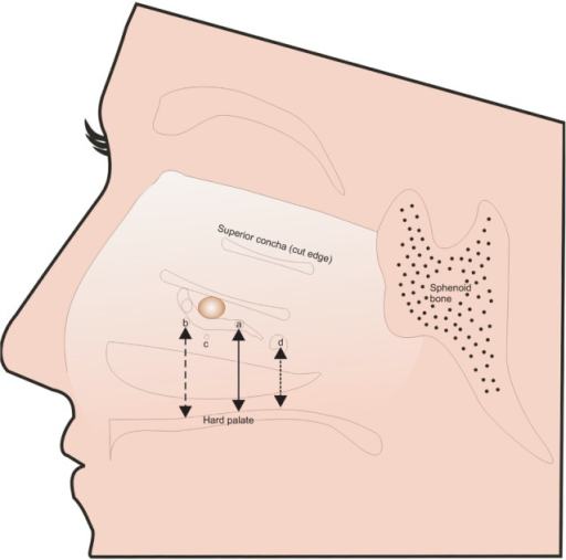 The schematic diagram of the lateral nasal wall where t | Open-i