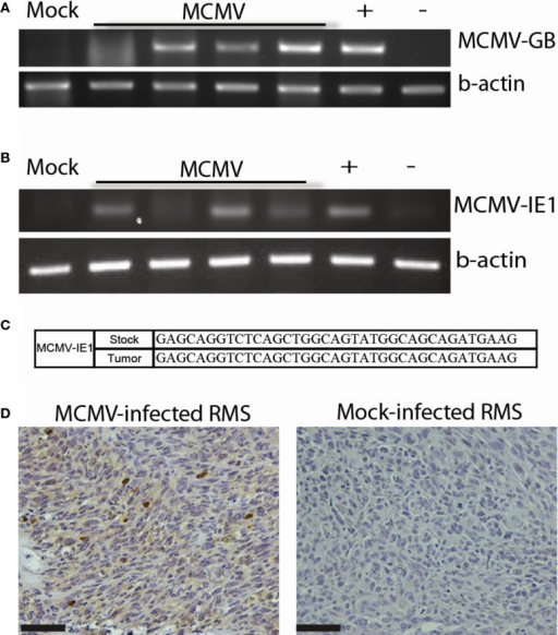 MCMV analysis of mouse tumors. (A) PCR for MCMV DNA in tumors from MCMV (n = 4) and mock-infected (n = 1) mice. (B) RT-PCR for MCMV-IE1 in tumors from MCMV (n = 4) and mock-infected (n = 1) mice. (C) RT-PCR product fidelity was validated by sequencing the amplified MCMV-IE1. (D) MCMV-IE1 immunohistochemistry in MCMV- and Mock-infected tumor. Scale bars = 50 μm. Reprinted by permission from the American Association for Cancer Research: Price et al. (17).