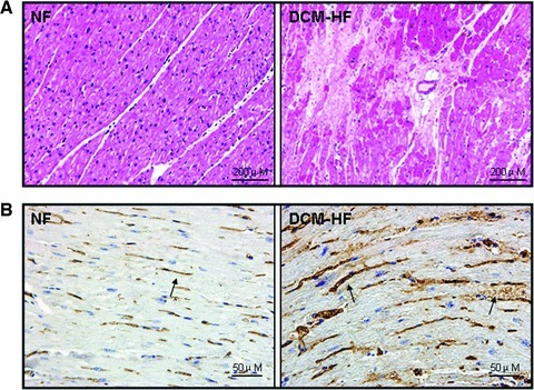 Histopathological analysis of IGF-2R. (A) Representative light microscopic findings in haematoxylin and eosin staining. The normal appearance of myocardial fibres with central nuclei is seen in non-failing control hearts (NF) and interstitial fibrosis replacement is found in DCM failing hearts (DCM-HF). (B) Representative light microscopic IGF-2R immunoreactivity using a monoclonal antibody, which recognizes IGF-2R. Few and weak immunoreactivity of IGF-2R is observed in non-failing control hearts (NF), but more and strong IGF-2R immunoreactivity can be seen in DCM failing hearts (DCM-HF). Arrows indicated the positive staining.