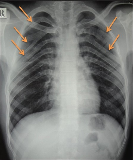 Chest radiograph showing bifid ribs