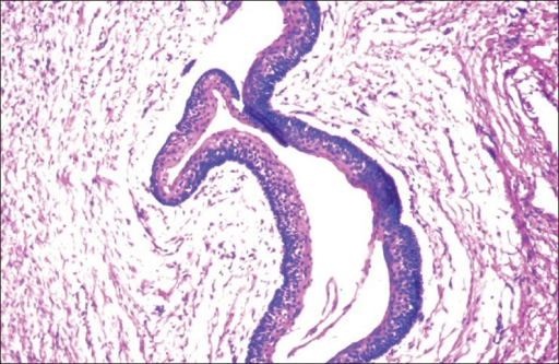 Hyperchomatic palisaded basal layer and corrugated parakeratotic surface (H and E, ×10)
