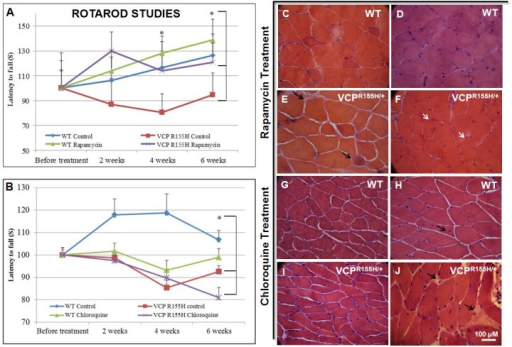 Rotarod performance and histological analyses of quadriceps in WT and VCPR155H/+ mice treated with rapamycin or chloroquine.Rotarod analysis of (A) rapamycin-treated and (B) chloroquine-treated 20-month old VCPR155H/+ and WT versus control animals at 2 week intervals. Histological analysis by H&E staining of quadriceps pathology from 20-month old control and (C-F) rapamycin- and (G-J) chloroquine-treated VCPR155H/+ and WT mice. White arrows point to overall improvement in the number of centrally located nuclei, reduced vacuoles, and an amelioration in the quadriceps fiber size and architecture. Black arrows point to worsened muscle pathology with increased vacuoles, interstitial space, and angulated fibers. The number of mice analyzed per experiment is 6–8.
