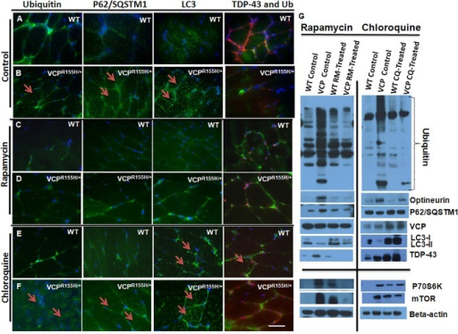 Immunohistochemical analyses of autophagy signaling cascade in the quadriceps of VCPR155H/+ and WT mice treated with autophagy-modifying drugs.Quadriceps muscles from (A,B) control, (C,D) rapamycin- and (E,F) chloroquine-treated 20-month old WT and VCPR155H/+ mice were stained with anti-ubiquitin, p62/SQSTM1, LC3-I/II, and TDP-43/ubiquitin specific antibodies, respectively (shown by arrows). Cells' nuclei were stained with DAPI (Magnification: 630X). Scale bar represents 100 μM. (G) Western blot expression analysis of autophagy proteins including ubiquitin, optineurin (OPTN), p62/SQSTM1, VCP, LC3-I/II, TDP-43, and mTOR pathway proteins: mTOR and p70S6K. Beta actin was used as a positive control. The number of mice analyzed per experiment is 6–8.