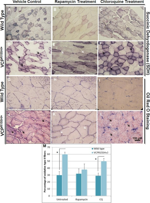 Mitochondrial enzyme analyses of the VCPR155H/+ and WT mouse quadriceps treated with rapamycin or chloroquine.Quadriceps muscles from (A,D) vehicle control (B,E) rapamycin-treated or (C,F) chloroquine-treated animals were stained with SDH antibody to observe mitochondrial proliferation and oxidative fibers/capacity (Black arrows point to Type II dark fibers; White arrows point to lighter fibers) and (G-L) Oil Red O to observe lipid droplets in WT and VCPR155H/+ mice at 20 months of age (Magnification: 400X). Black arrows point to increased Oil Red O Staining; white arrows point to diminished Oil Red O staining. (M) Quantification of Type II oxidative fibers with autophagy-modifying drugs. The number of mice analyzed per experiment is 8–10. Statistical significance is denoted by *p<0.005 by Student one-tailed t-test.