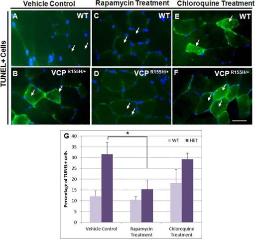 TUNEL analyses of quadriceps in rapamycin- and chloroquine-treated VCPR155H/+ and WT mice.TUNEL staining of quadriceps muscles from (A,B) control untreated (C,D) rapamycin-treated and (E,F) chloroquine-treated WT and VCPR155H/+ animals at 20 months of age. (G) Quantification of TUNEL+ cells in control and treated VCPR155H/+ and WT animals. Arrows point to TUNEL+ cells indicating cell death. Statistical significance is denoted by *p<0.005 by Student one-tailed t-test. The number of animals used was n = 8-10/group.