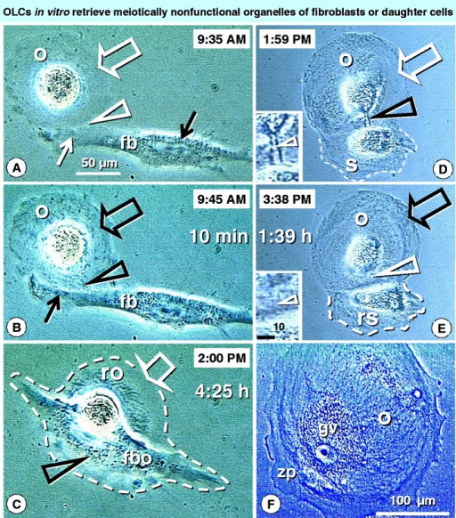 In vitrodeveloping oocytes are supplied with meiotically nonfunctional organelles from fibroblasts or satellite cells. Time lapse photography shows that early developing oocytes (o, panel A) are low in optically dense cytoplasmic organelles (white open arrow). They can be joined (arrowhead) by fibroblast-like cells (fb), providing additional organelles. Such fibroblast-type cells initially show optically dense organelles close to the nucleus (black solid arrow), but not in the arm extended toward the oocyte (white solid arrow). Within 10 min (panel B), however, the optically dense organelles are apparent in the extended arm (solid black arrow) and within adjacent oocyte cytoplasm (black arrowhead) and distant oocyte regions (black open arrow). At 4h 25 min (panel C), however, the fibro-oocyte (fbo) hybrid is formed and regressing oocyte (ro) exhibits depletion of organelles (arrow) accumulated by the fibroblast (arrowhead). Alternatively, the developing oocytes (o, panel D) deficient in cytoplasmic organelles (white arrow) exploit the satellite cells (s), which are produced by the oocytes themselves. The oocyte is supplied by suicidal satellite cell by a tube like ring canal - (black arrowhead; see inset). In panel E the oocyte exhibits enhanced content of the optically dense organelles (black arrow) and the ring canal draining the satellite disappears (white arrowhead - see inset). The satellite cell size is reduced (dashed line) and the perinuclear space is altered (compare with panel D). Oocytes enriched by satellites' organelles (panel F) exhibit good morphology [200 micron size, germinal vesicle (gv), and thick zona pellucida (zp)], but are unable to resume meiosis II due to the lack of meiotically functional organelles provided by secondary Balbiani body derived from granulosa cells in vivo. Bar in A for A-E. Panel C reprinted from Ref. [26]: © Antonin Bukovsky. Other panels adapted from Ref. [34], with a permission: © Wiley-Liss, Inc.