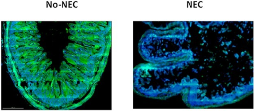 Proximal Jejunum Intestinal Fatty Acid Binding Protein (I-FABP) immunohistochemical staining.Immunohistochemistry fluorescent staining for I-FABP in proximal jejunum specimens. In these images I-FABP is represented in green. In the No-NEC piglets there is robust expression of I-FABP and in the NEC piglets the mucosa has been significantly denuded and I-FABP signal degraded.