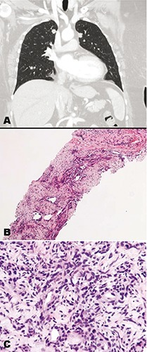 Phyllodes tumor metastases to the lung. A) Chest computed tomography (CT) showing multiple pulmonary nodules. B,C) CT-guided biopsy specimen (Hematoxylin and Eosin) of a lung nodule showing metastatic spindle cell tumor morphologically identical to the malignant phyllodes tumor.