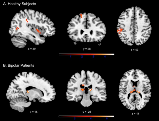 Results of the within-group analyses at whole-brain level during conflict monitoring in (A) healthy subjects and (B) euthymic bipolar patients.Identified regions are projected onto 2D anatomical slices in axial, coronal and sagittal orientations (p < 0.001 uncorrected at whole brain level, pFWE < 0.05 after small volume correction).