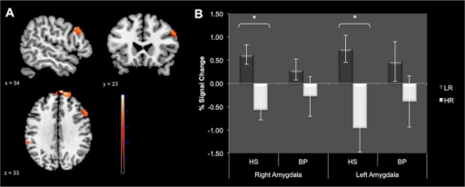 Results provided by between-group analyses.Panel A: Whole-brain comparison in HS vs BP during conflict monitoring (LR > HR) (p < 0.001 uncorrected at whole brain level, pFWE < 0.05 after small volume correction). Identified regions are projected onto 2D anatomical slices in axial, coronal and sagittal orientations. Panel B: Region of interest analysis focused on bilateral amygdala. The graph shows the mean %MR signal intensity variations ± SE according to the group and the amount of the conflict (LR vs HR). *p<0.05. Abbreviations: BP: Bipolar patients; HS: Healthy subjects; LR: Low conflict resolution; HR: High conflict resolution.
