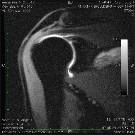T1-weighted, fat-suppressed, coronal oblique magnetic resonance imaging arthrography images demonstrating a patient with an intact superior labrum following type II SLAP repair. Note the absence of gadolinium between the superior labrum and glenoid postoperatively
