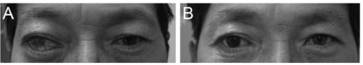 (A) Preoperative photo of a patient with an injected phthisical right eye. (B) After evisceration, and with implantation of a multipurpose conical porous synthetic orbital implant with prosthesis.