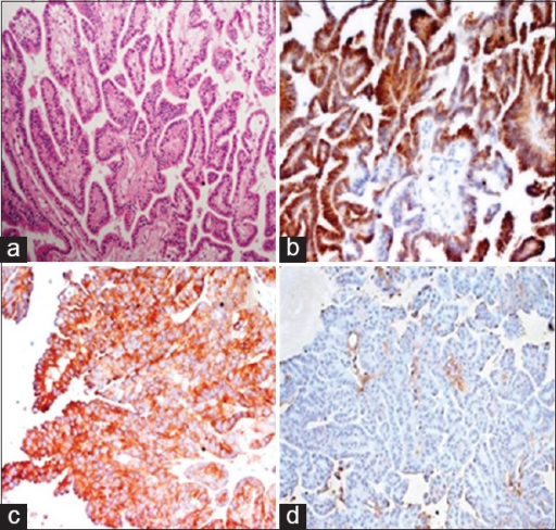 Histopathological images showing a papillary tumor with smooth papillae lined by single layer of columnar cells with no mitosis (a). Immunohistochemical images staining for pancytokeratin and synaptophysin were positive (b and c) while being negative for epithelial membrane antigen (d). Features were compatible with choroid plexus papilloma