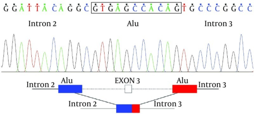 Sequencing Result of 1120 bps Product in Patient Show Deletion of Large Segment Containing Exon 3The Deletion Occurred Within Alu Repeat Segment.