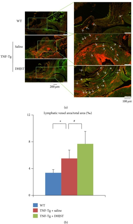 DHJST increases lymphangiogenesis in ankle joints of TNF-Tg mice. (a) Three-month DHJST or saline treatment, ankle joints were harvested and subjected to double immunofluorescence staining with anti-LYVE-1 and anti-podoplanin antibodies. Representative LYVE-1 (green) and podoplanin (red) stained ankle sections show that LYVE-1+/podoplanin+ lymphatic vessels (white arrows) are present at synovium and soft tissue surrounding the ankle joints of WT and TNF-Tg mice. (b) Quantitation of LYVE-1+/podoplanin+ lymphatic vessel area inside the areas of ankle joint. Values are the means ± SD of 5-6 legs per group. ∗p < 0.05 versus WT group, #p < 0.05 versus saline treated TNF-Tg group.