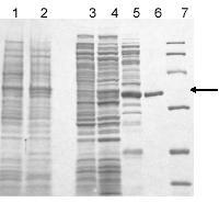 SDS-PAGE of steps in the purification of RFAP synthase from A. fulgidus. E. coli BL21(DE3) with pJWS1 was induced for the production of RFAP synthase encoded by the AF2089 gene. Samples were boiled for 10 min with reducing SDS-PAGE sample buffer prior to loading on a 12% polyacrylamide gel, and the gel was stained with Coomassie blue. Lane 1: uninduced cells (20 µg protein); lane 2: cells induced at 30˚C with 1 mM IPTG (20 µg protein); lane 3: cell-free extract (26 µg); lane 4: heated cell-free extract (27 µg); lane 5: hydroxyapatite fraction (17 µg); lane 6: MonoQ fraction (2 µg). The molecular mass markers (97.4, 66.2, 45, 31, 21.5, and 14 kilodaltons) are shown in lane 7. The protein encoded by AF2089 has a predicted molecular mass of 34 kilodaltons and is indicated by the arrow.