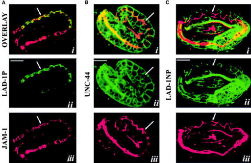 LAD-1P (A, green) is colocalized with JAM-1 (red) at intestinal adherens junctions but is distinct from UNC-44 ankyrin (B) and LAD-1NP (C) localization. Arrows in A–C point to the intestinal adherens junction. Bar, 20 μm.