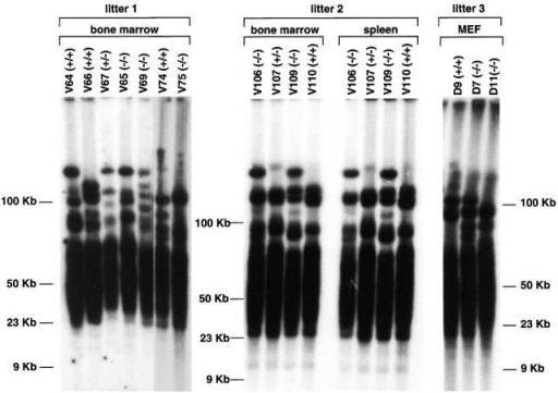 TRF analysis in wild-type, PARP-1+/−, and PARP-1−/− primary cells. TRF analysis of primary BM cells or splenocytes, as indicated, from four wild-type (V110, V64, V66, and V74), two PARP-1+/− (V107 and V67), and five PARP-1−/− (V106, V109, V65, V69, and V 75) littermate mice. TRF analysis of primary (passage 1) MEFs from littermate wild-type (D9) and PARP-1−/− (D7 and D11) embryos is also shown. Notice that TRF signals are similar in size in PARP-1−/−, PARP-1+/−, and wild-type.