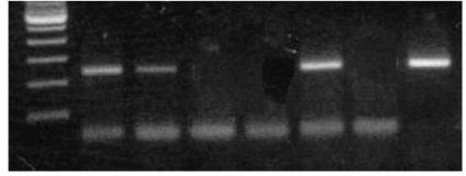 Agarose gel analysis of endometrial adenocarcinomas by PCRusing HPV 16 type-specific primers. Line 1 (marker 100 bps), lines 2, 3, 6(positive samples), lines 4, 5 (negative samples), line 7 (negative control), andline 8 (positive control).