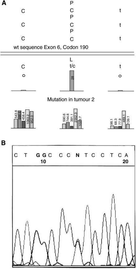 TP53 analysis of tumour 2 by P53GeneChip™ and by Sanger dideoxy sequencing. (A) Bar chart shows signal intensities from array tiling that screened codon 190 from a P53GeneChip hybridised with target from tumour 2. The C to T transition at codon 190 is indicated by the bar at position 2 [C C T to C T/C T, Proline (P) to Leucine (L)]. (B) Electropherogram from ABI Genetic Analyzer showing p53 exon 6 DNA sequence (5′ to 3′) in tumour 2. The 'N' shows the position of the C to T transition at the second position of codon 190.