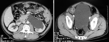 Computer tomography showing (A) dilated left upper urinary tract and (B) left megaureter close to the bladder.