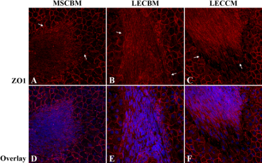Effect of 3 culture media on UCB1 MSC association with damaged endothelium. Fluorescence confocal microscopic images show the formation of MSC cell sheets in areas of damaged HCEC (arrows in A-C). Note that, in wounded corneas incubated in MSCBM, ZO1 is localized diffusely within the cytoplasm of the MSCs. In wounded corneas incubated in LECBM or LECCM, ZO1 tended to be localized at the lateral borders of MSCs. Red: ZO1. Blue: TO-PRO-3-stained nuclei. Original magnification: 40×.