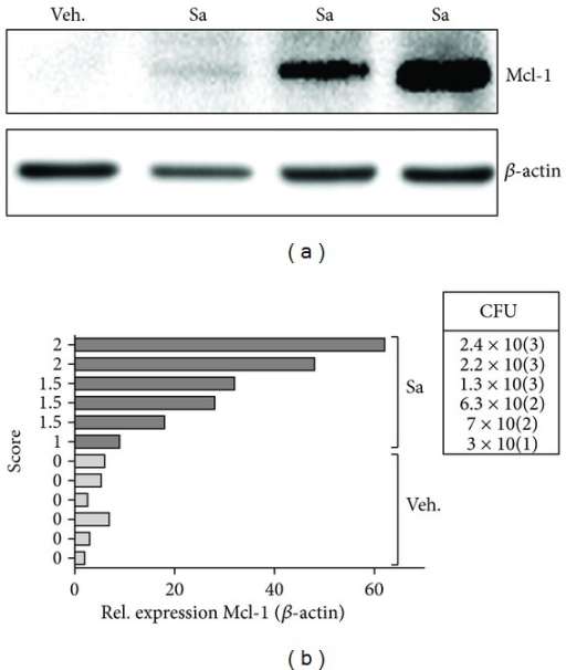Exposure to S. aureus triggers Mcl-1 production in vivo. (a) Immunoblot reveals increase in Mcl-1 expression in inflamed joints derived from three individual S. aureus-infected mice (Sa) in comparison to noninfected animals (Veh.). A representative immunoblot from three separate experiments is shown. (b) The expression of Mcl-1 in joints correlates with infection score and bacterial load determined as described in Section 2. Data represents Mcl-1 levels in noninfected (Veh.; n = 6) and S. aureus-infected (Sa; n = 6) animals, obtained by densitometric analyses of western blots.