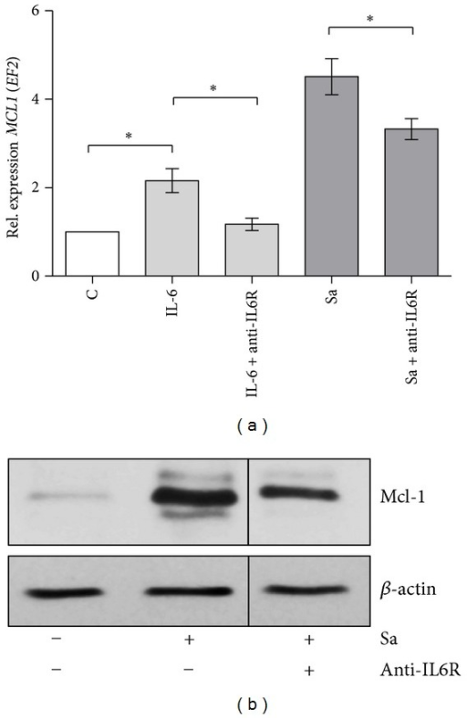 Mcl-1 expression induced by S. aureus is mediated by IL-6. (a) hMDMs were preincubated with anti-IL6 receptor antibodies (1 μg/mL) for 30 min and then infected with S. aureus at an MOI of 1 : 50 and/or stimulated with IL-6 (200 ng/mL). At 7 h p.i., RNA was extracted and relative MCL1 expression was measured by qRT-PCR. Diagram shows the mean values calculated from the results of at least three independent real-time reactions using hMDMs derived from different donors. Bars represent mean relative expression ± SD. *P < 0.05. (b) hMDMs were preincubated with anti-IL6 receptor (1 μg/mL) antibodies for 30 min and then infected with S. aureus Newman at an MOI of 1 : 50. The effect of S. aureus on Mcl-1 protein synthesis was measured 20 h after-infection by immunoblot. Shown is a representative immunoblot from three separate experiments performed on hMDMs derived from different donors.