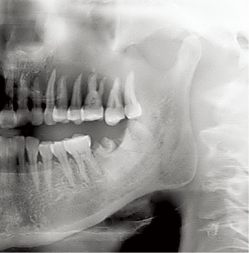 Panorex radiograph of a poorly defined, irregular osteolytic ACC lesion involving the left maxilla.