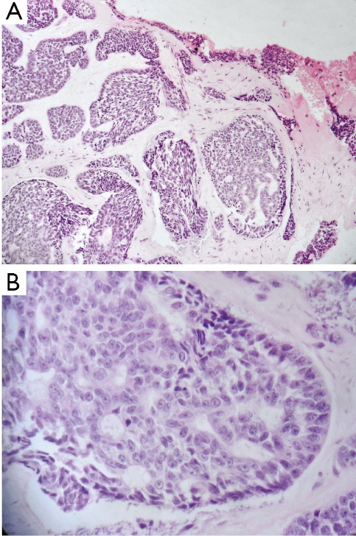 Micrographs of the ACC stained with hematoxylin and eosin. A. Prominent solid and microcystic patterns of the ACC with the ulcer margins (200×); B. Details of the ACC, showing a cribriform pattern and its tumor cells (400×).