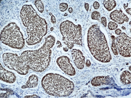 Strong positive p63 expression in myoepithelial cells.