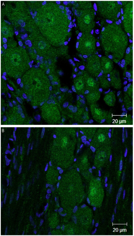 DNMT3b transcript expression remains exclusively neuronal after peripheral nerve injury. Immunohistochemisry was performed on sections obtained from DRG ipsilateral to the peripheral injury in two SNI rats 1 week post-surgery. (A,B) are two examples of images obtained by staining the DRG sections with DNMT3b (green) antibody and DAPI (blue). Note that, similar to the naïve tissue, DNMT3b expression is ubiquitous in neurons, but absent from glia.