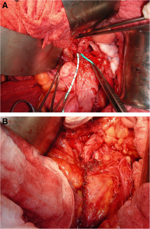 "Combined Y-shaped common channel TUU with Boari flap. (A) and (B) showed the ""combined Y-shaped common channel TUU with Boari flap"" with bilateral double-J catheters (a) right ureter (b) left ureter (c) Boari flap."
