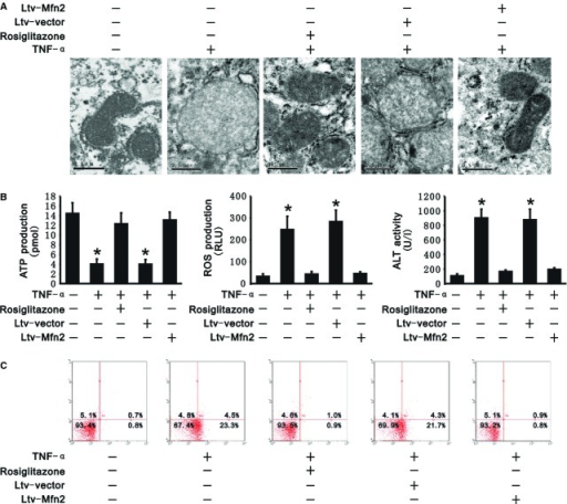 PGC-1α/Mfn2 pathway protected hepatocytes from tumour necrosis factor alpha (TNF-α)-induced injury. Rosiglitazone and transfection of Ltv-Mfn2 decreased mitochondrial swelling, maintained the adenosine triphosphate (ATP) production and protected cells from apoptosis as well as inhibited reactive oxygen species (ROS) production. (A) Mitochondrial morphology in L02 cells was observed by transmission electron microscopy; scale bar: 0.5 μm. (B) ATP (left panel) and ROS (middle panel) production was measured in transfected and untransfected L02 cells as well as in L02 cells with rosiglitazone under treatment of exogenous recombinant TNF-α. ALT activity (right panel) was measured in supernatants from transfected and untransfected L02 cells as well as from L02 cells with rosiglitazone under treatment of exogenous recombinant TNF-α. (C) Quantification of apoptotic cells was carried out by flow cytometry. Representative plots of annexin V-APC/PI flow cytometry from three independent experiments are presented. The number represents the percentage of cells in each quadrant. All data presented are mean ± SEM (n = 5). *P < 0.05 versus control.