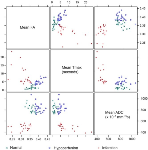 Scatter plots for fractional anisotropy (FA), Tmax, and apparent diffusion coefficient (ADC) mean values by region. The correlation pattern is different depending on the region. In the normal white matter (WM), FA, and ADC have a moderate negative correlation (rs=−0.590; P=0.005). In the hypoperfused WM, Tmax and FA have moderate positive correlation (rs=0.561; P=0.008). In the infarcted WM, there are moderate negative correlations between Tmax and FA (rs=−0.539; P=0.012) and Tmax and ADC (rs=−0.681; P<0.001).