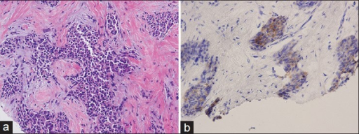 Invasive carcinoma comprised of plasmacytoid tumor cells, is seen on hematoxylin and eosin-stained tissue sections of the core needle biopsy (a). The tumor cells are immunopositive for synaptophysin which supports the diagnosis of neuroendocrine carcinoma (b)