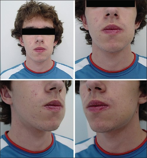 Clinical view of the patient showing swelling in his left side of the mandible