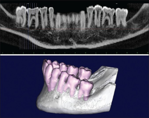 Panoramic computed tomography and the tri-dimensional reconstruction of the mandible after 5 years showing complete healing of the keratocyst odontogenic tumor and vitality of the first and second mandibular molars